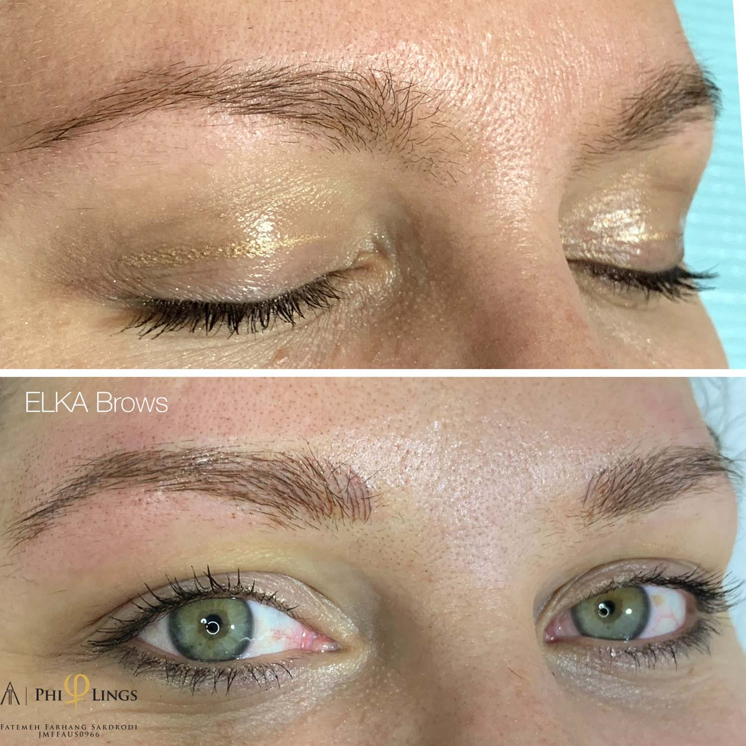 eyebrow tattooing at Elka Clinic