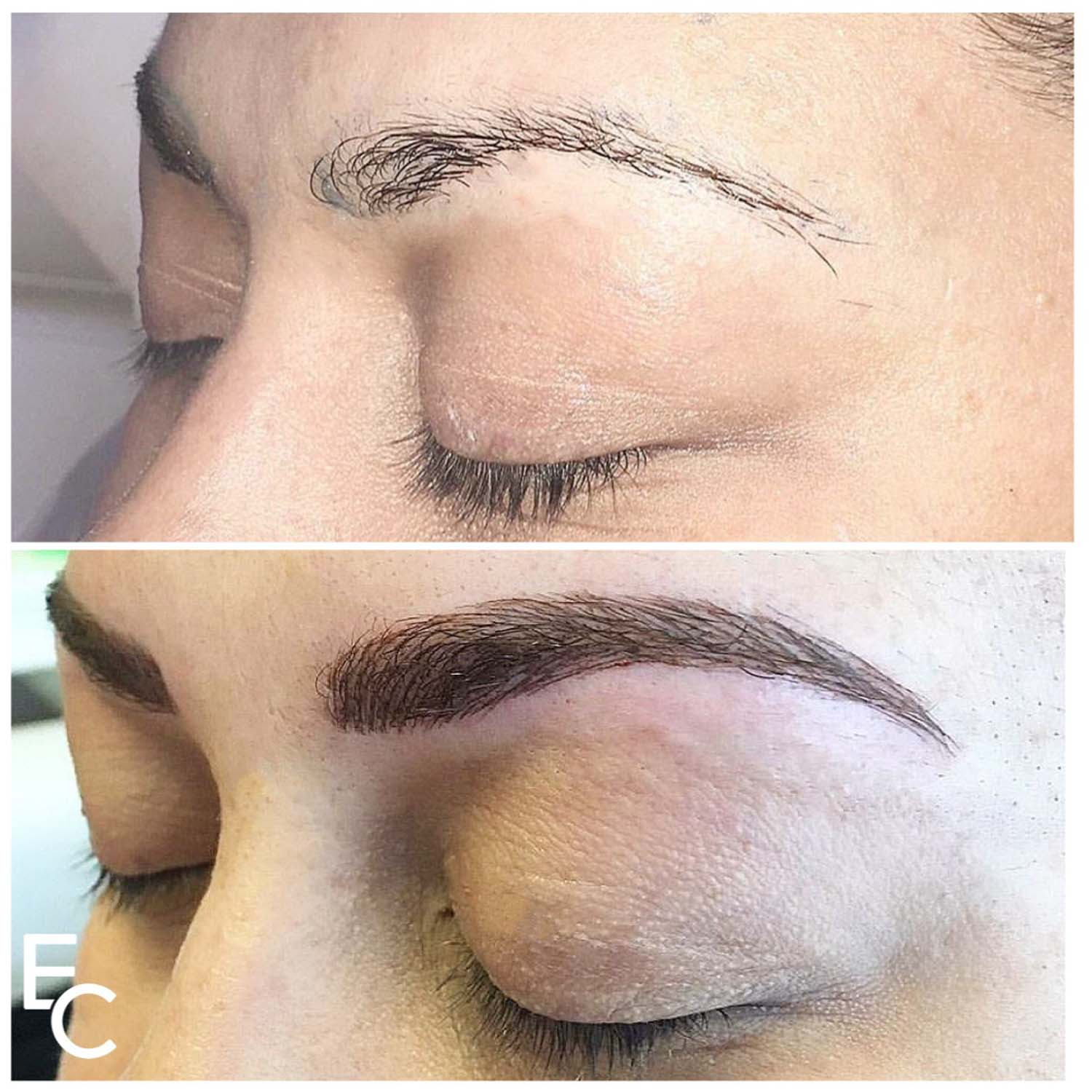 eyebrow tattoo at Elka Clinic