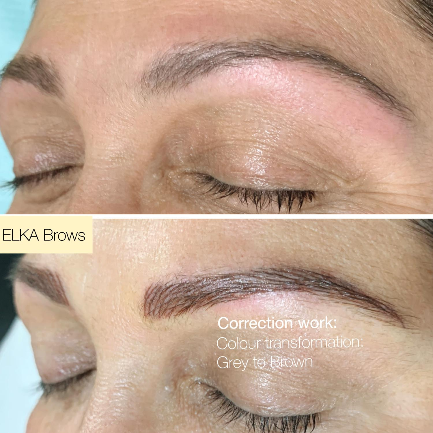 eyebrow tattoo correction work by Elka Clinic