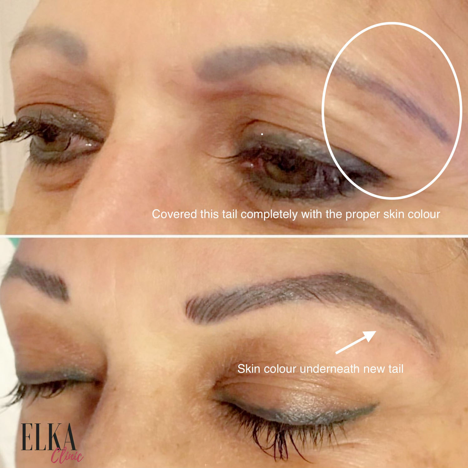 old eyebrow tattoo correction