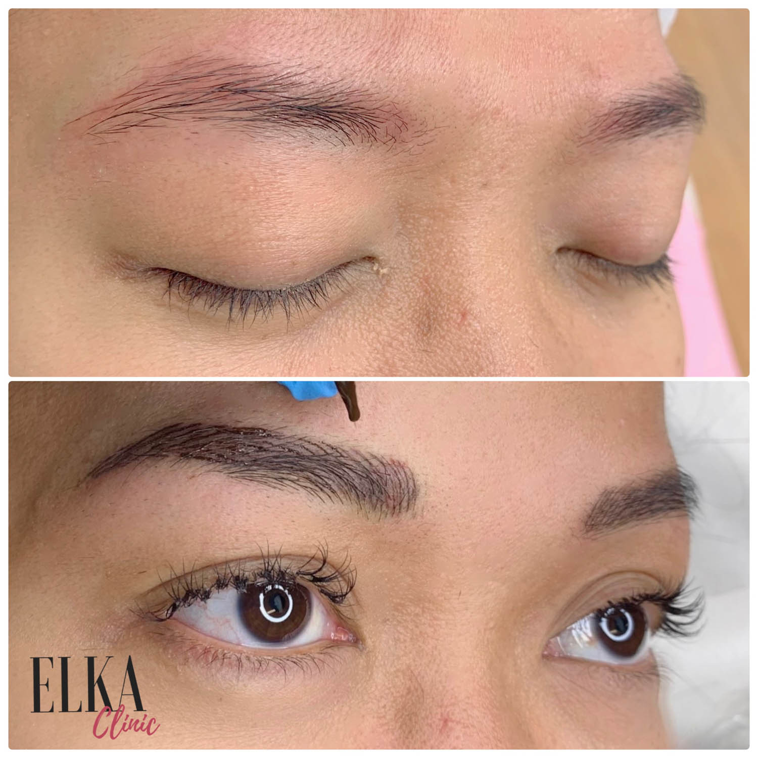 eyebrow tattoo correction at Elka Clinic