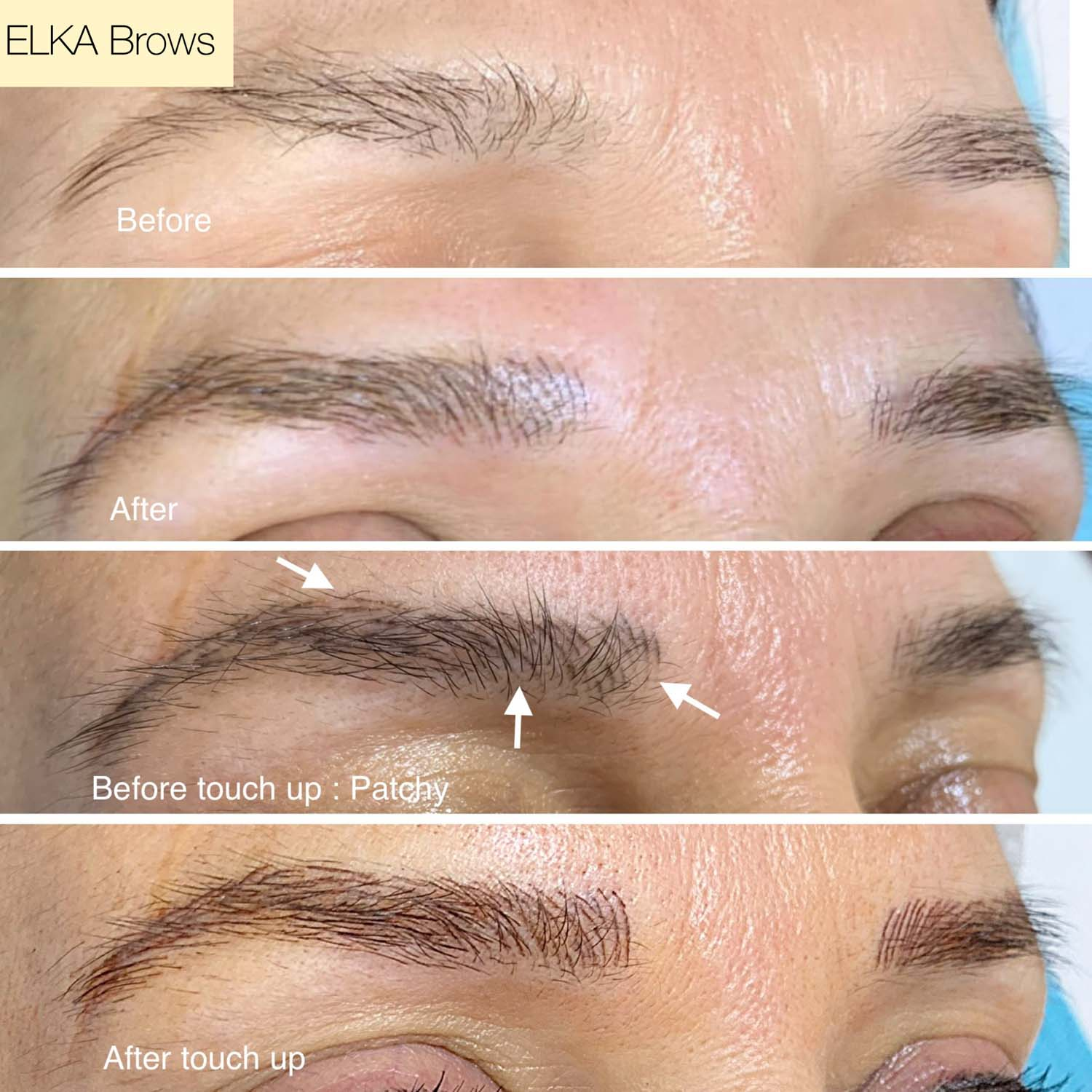 eyebrow tattoo touch up by Elka Clinic