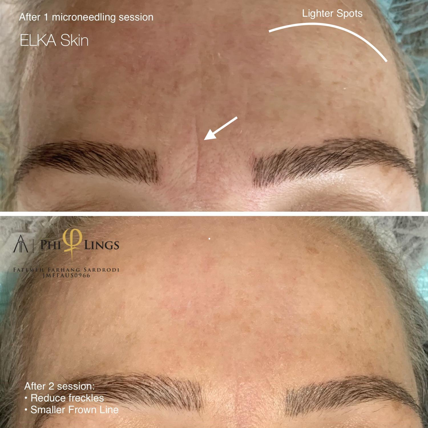 freckles reduction by microneedling