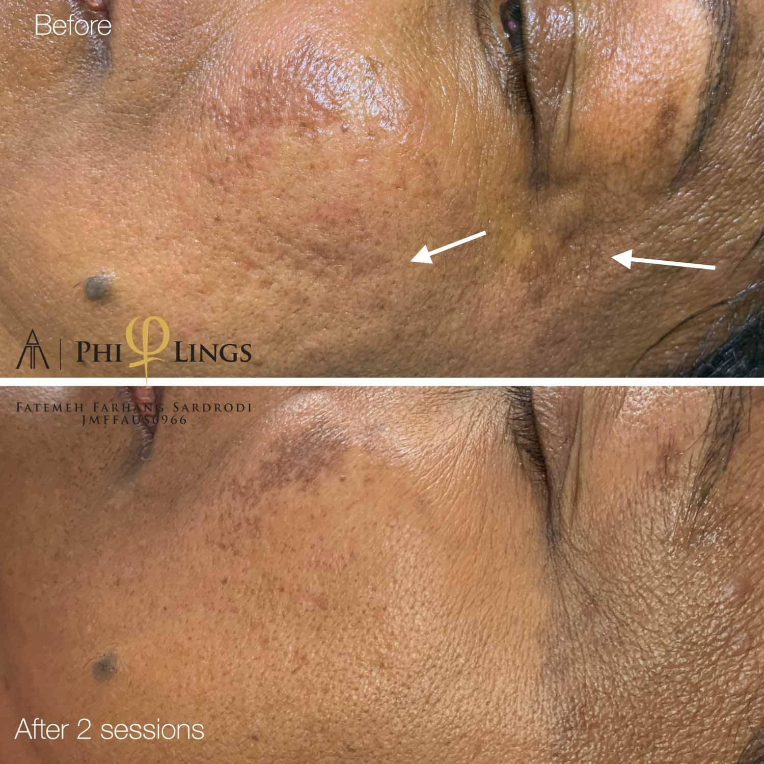 skin spots improvement