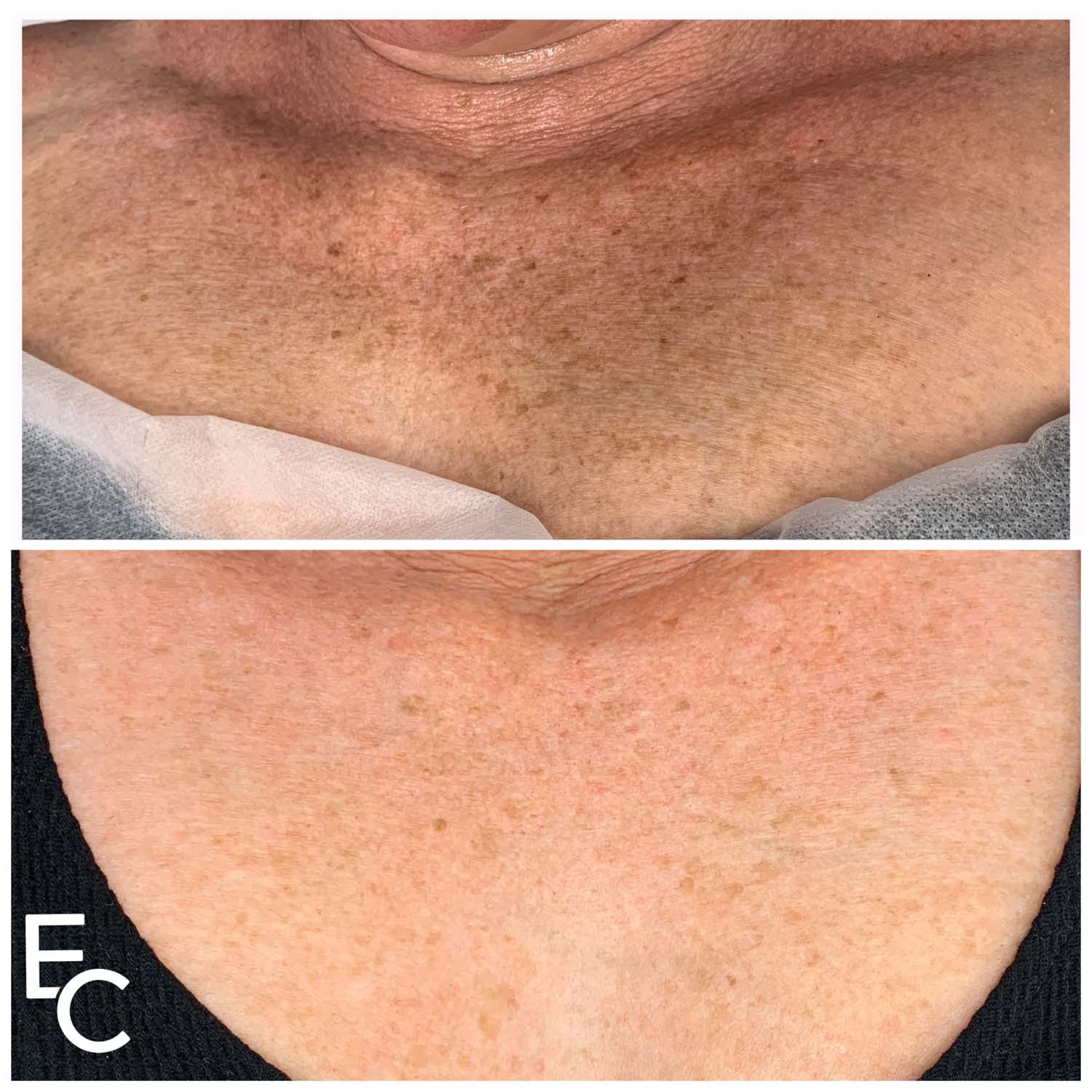 skin spots microneedling before and after
