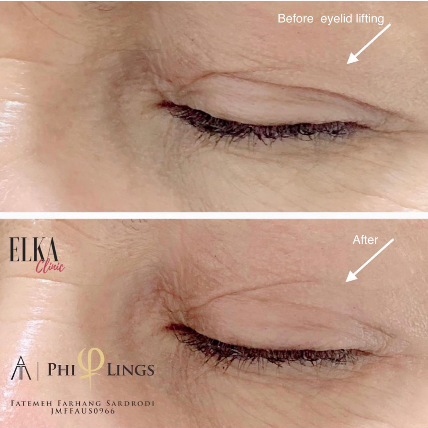 eyelid lifting by phi ion plasma pen