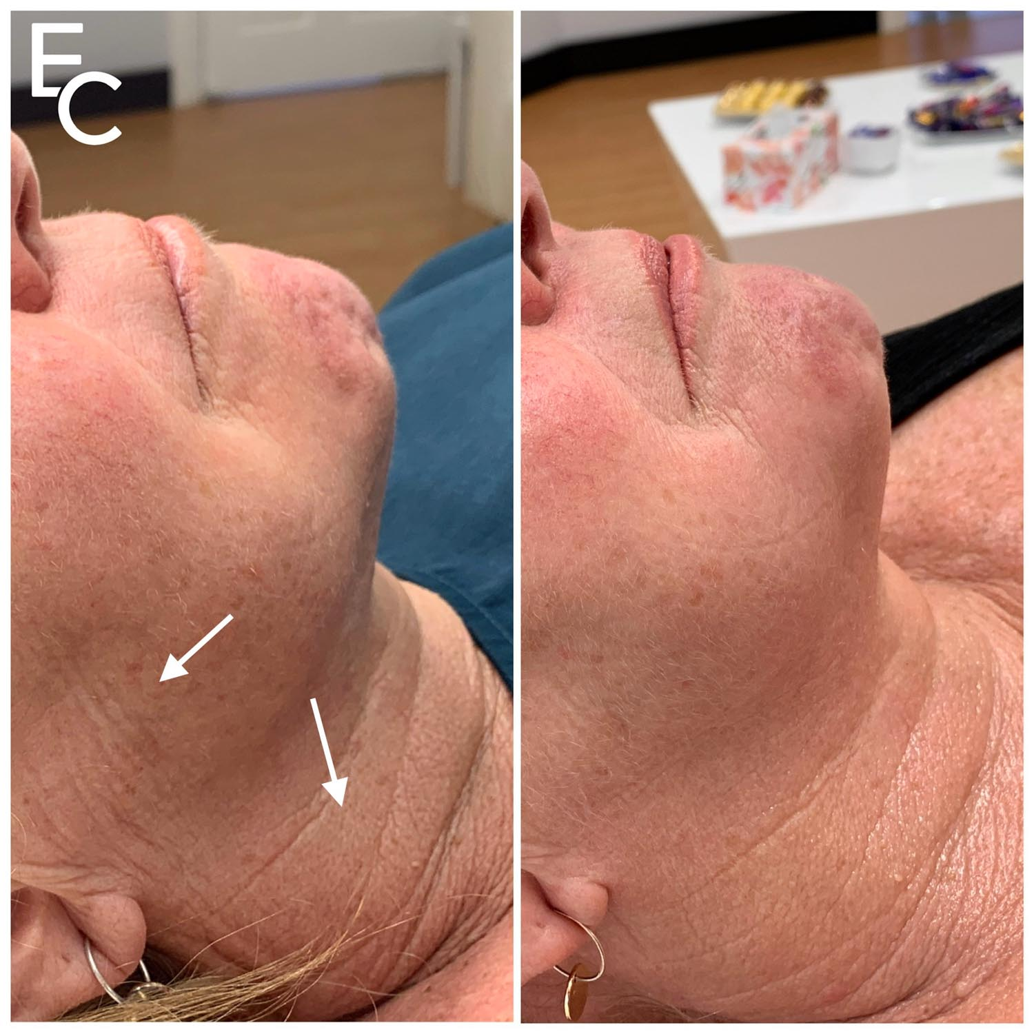 neck wrinkles improved by microneedling