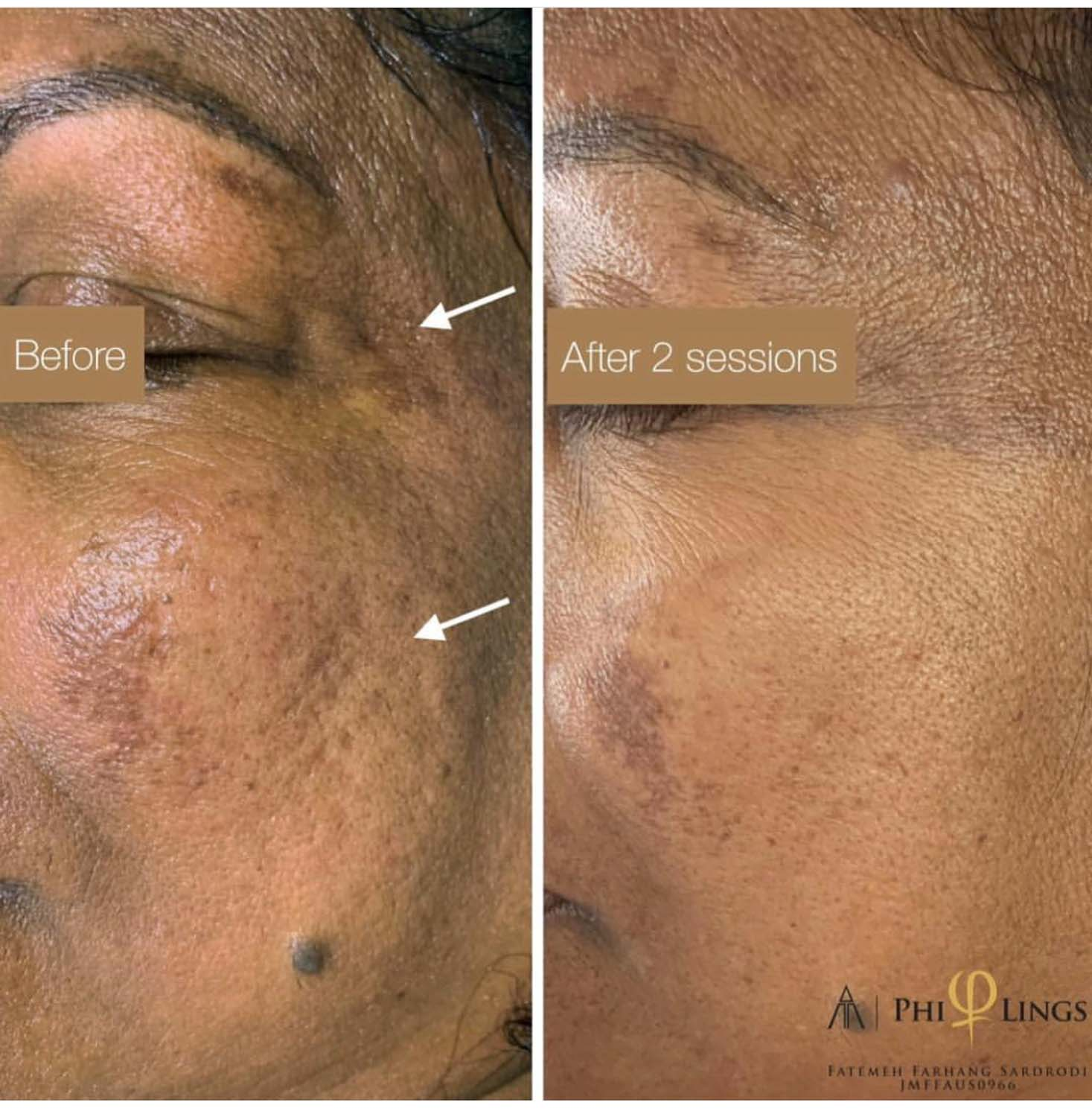 skin spots improved by microneedling