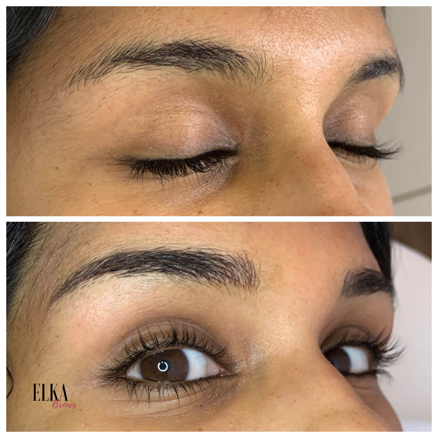 eyebrows elka clinic