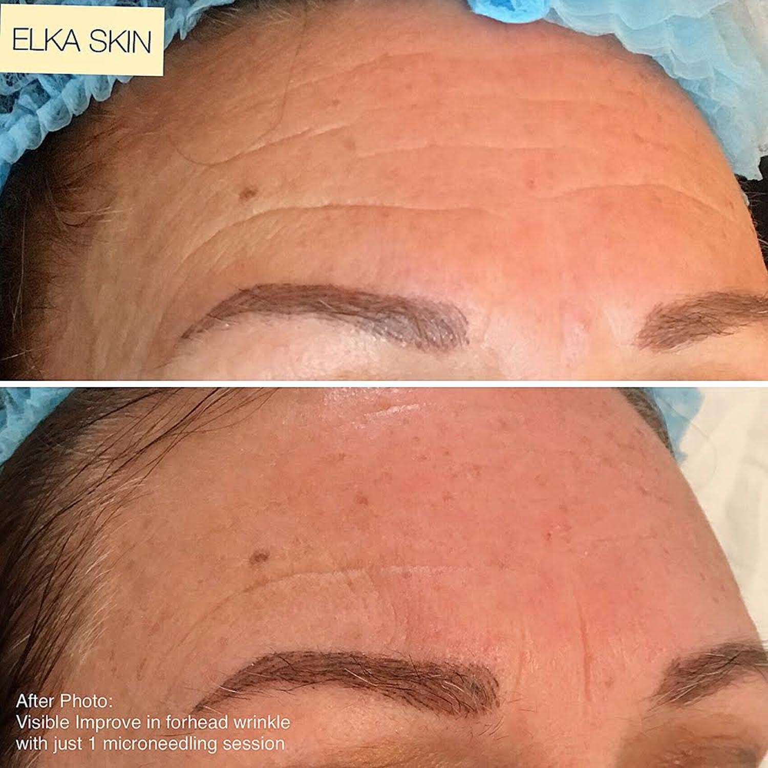 forehead wrinkles improved by microneedling