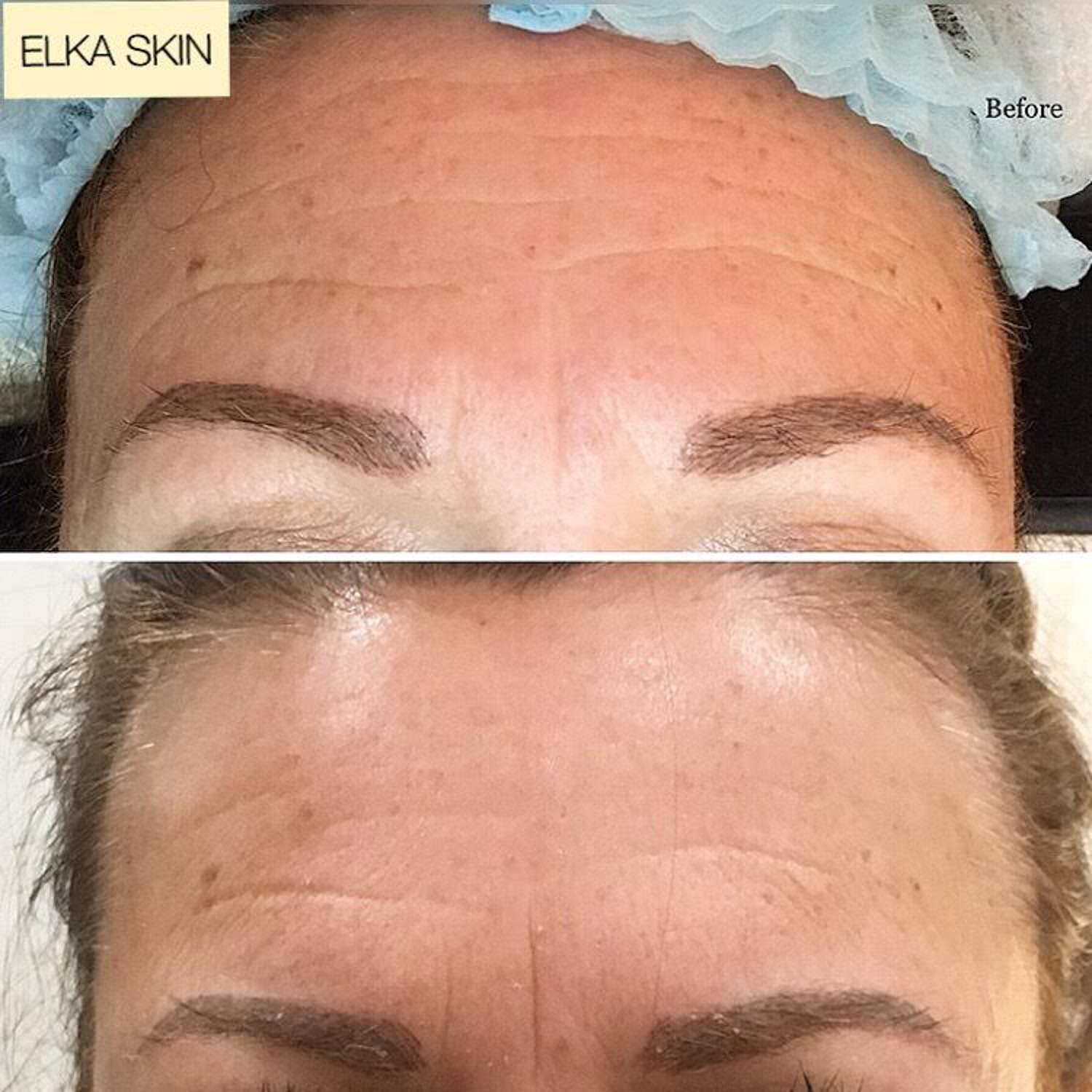 forehead wrinkles gone by microneedling