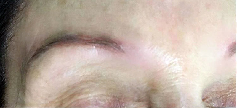 Eyebrow microblading gone wrong