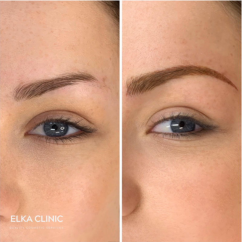before and after images of powder brows