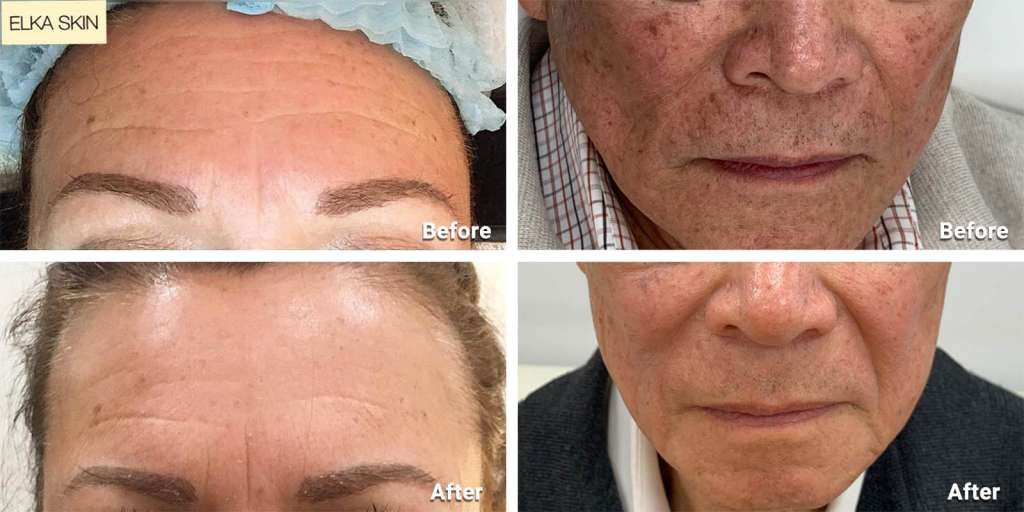 microneedling for trating wrinkles, acne scars, large pores and face lines