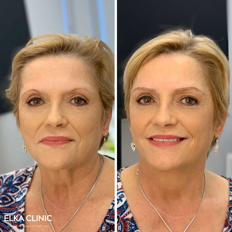 how to find the best eyebrow tattoo specialist and clinic Perth