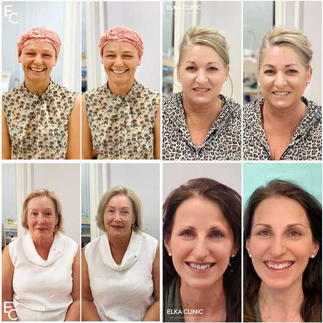 Semi-permanent make-up techniques such as eyebrow tattoo, nano brows and microblading for eyebrow hair loss