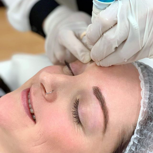 best eyebrow tattoo, skin microneedling and scalp micropigmentation clinic in Perth