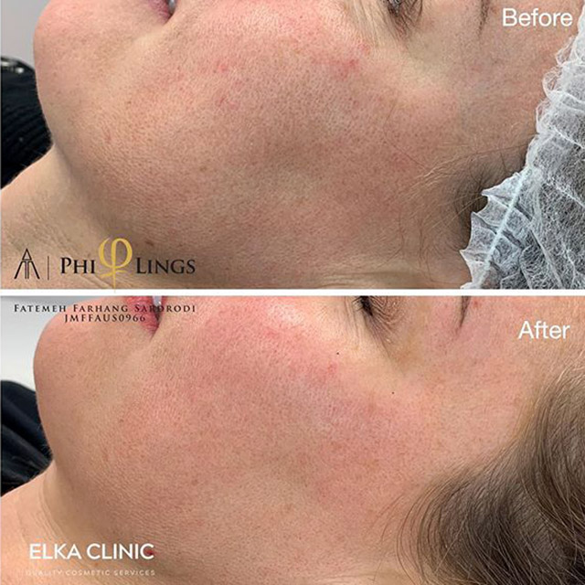 microneedling for acne scars before and after photos