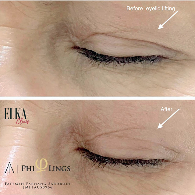 Non-surgical blepharoplasty before-after photo