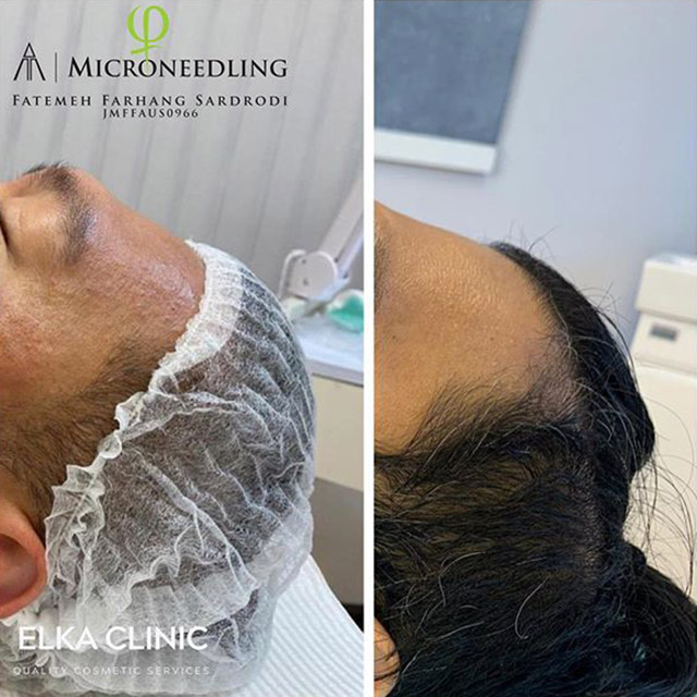 microneedling for healing acne scars