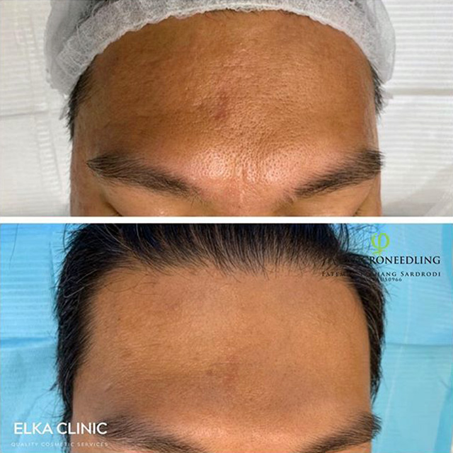 microneedling treatment for acne scarring