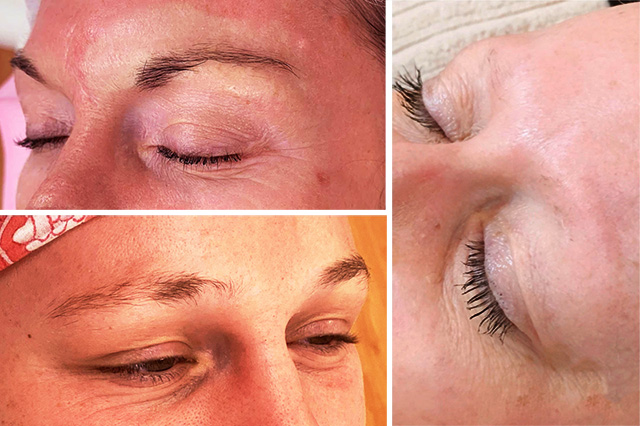 eyebrow hair falling out due to diseases such as Alopecia, Eczema, Psoriasis, etc.