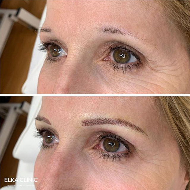 eyebrow feathering before-after image by elka clinic Perth
