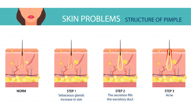 how acne or pimple forms