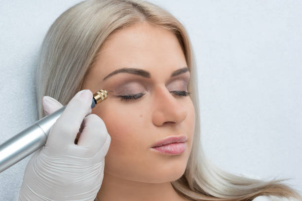 Plasma Pen treatment for skin tightening, lifting, remodeling and rejuvenating