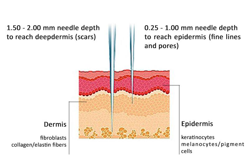 appropriate derma pen needle depth for acne scars treatment