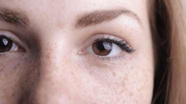 Eyebrow hair loss and treatments